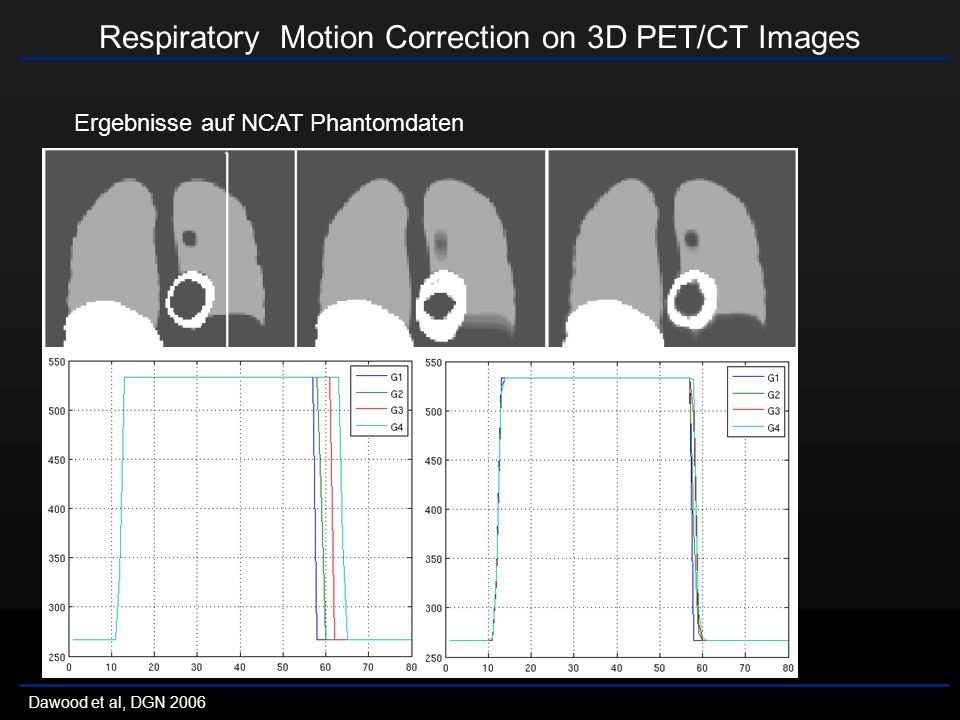 Respiratory Motion Correction on 3D PET/CT Images Dawood et al, DGN 2006 Patientendaten Patient 1: 13 N-Ammoniak