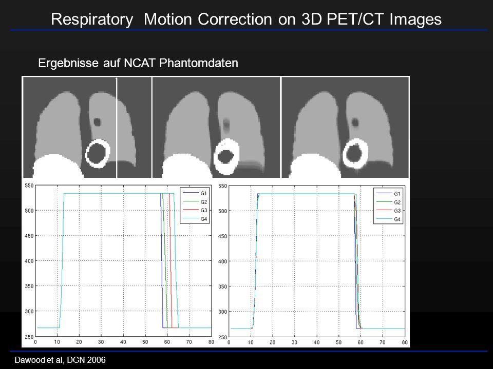 Respiratory Motion Correction on 3D PET/CT Images Dawood et al, DGN 2006 Ergebnisse auf NCAT Phantomdaten