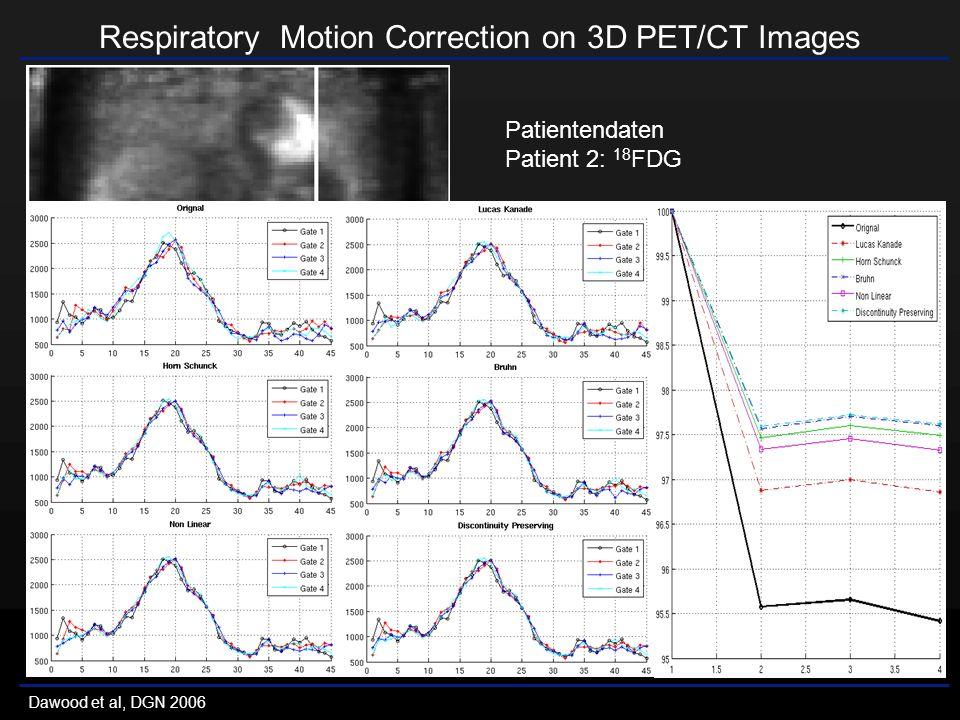 Respiratory Motion Correction on 3D PET/CT Images Dawood et al, DGN 2006 Patientendaten Patient 2: 18 FDG