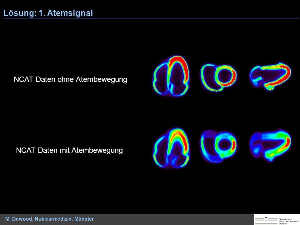 M. Dawood, Nuklearmedizin, Münster NCAT Daten mit Atembewegung NCAT Daten ohne Atembewegung Lösung: 1. Atemsignal