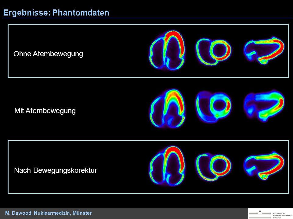 M. Dawood, Nuklearmedizin, Münster Mit Atembewegung Ohne Atembewegung Nach Bewegungskorektur Ergebnisse: Phantomdaten