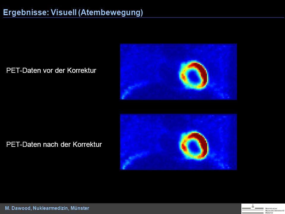 M. Dawood, Nuklearmedizin, Münster Ergebnisse: Visuell (Atembewegung) PET-Daten vor der Korrektur PET-Daten nach der Korrektur
