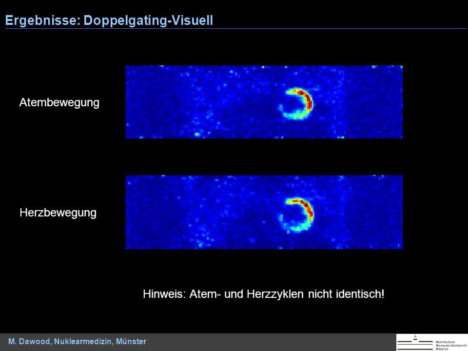 M. Dawood, Nuklearmedizin, Münster Ergebnisse: Doppelgating-Visuell Atembewegung Herzbewegung Hinweis: Atem- und Herzzyklen nicht identisch!