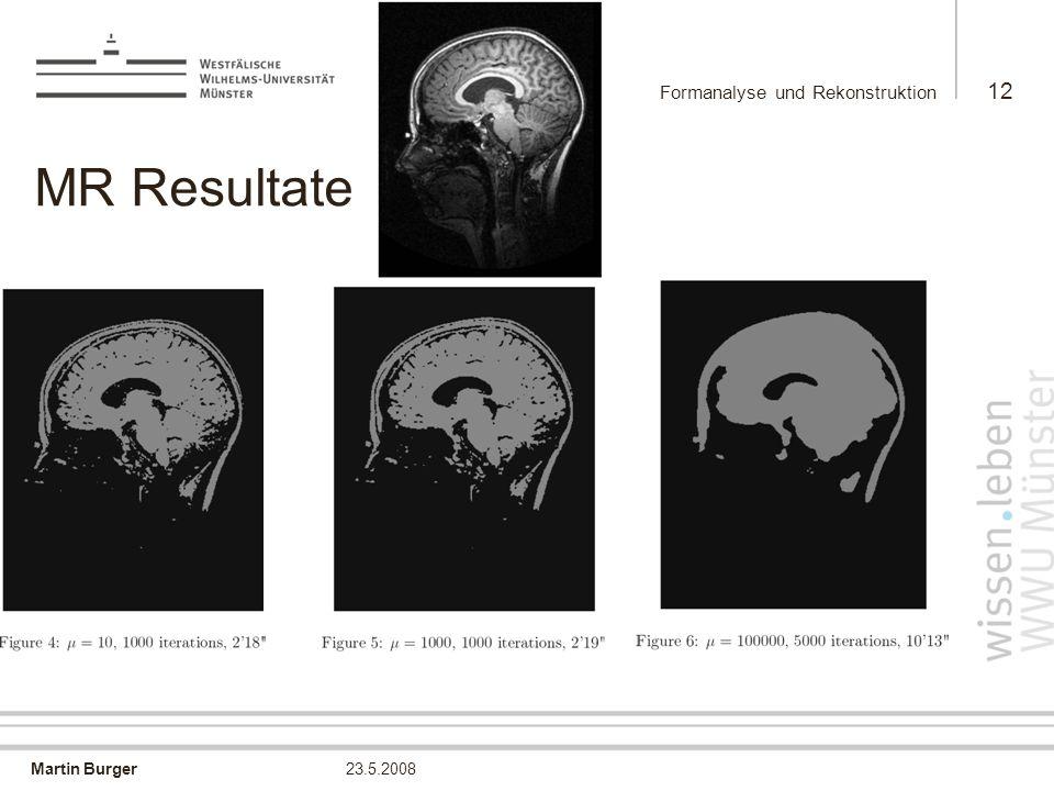 Martin Burger Formanalyse und Rekonstruktion 12 23.5.2008 MR Resultate