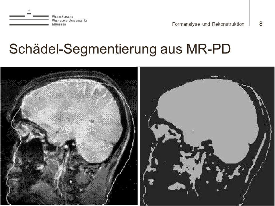 Martin Burger Formanalyse und Rekonstruktion 8 23.5.2008 Schädel-Segmentierung aus MR-PD