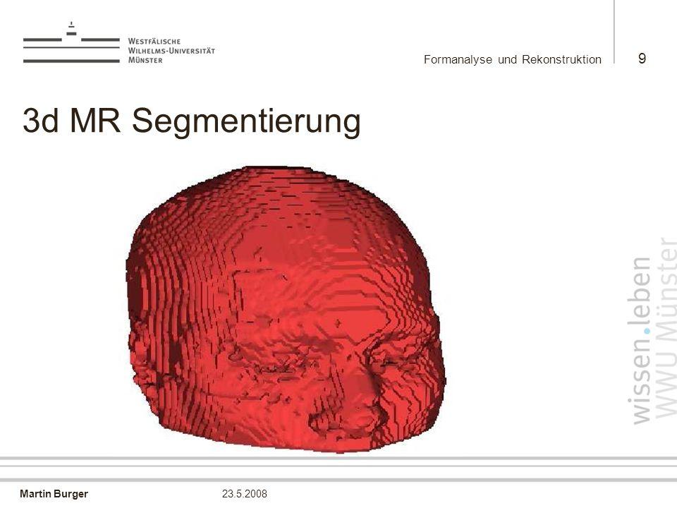 Martin Burger Formanalyse und Rekonstruktion 9 23.5.2008 3d MR Segmentierung