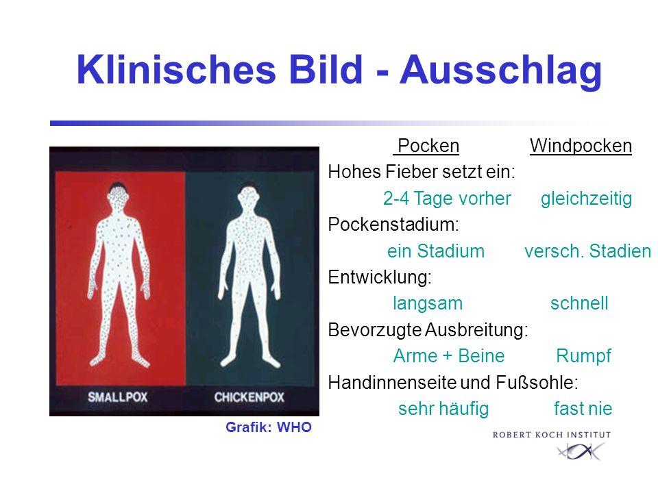 Klinisches Bild - Ausschlag Pocken Windpocken Hohes Fieber setzt ein: 2-4 Tage vorher gleichzeitig Pockenstadium: ein Stadium versch. Stadien Entwickl