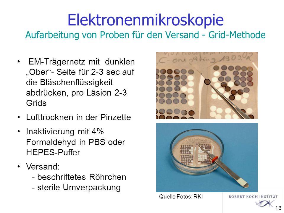 Elektronenmikroskopie Aufarbeitung von Proben für den Versand - Grid-Methode EM-Trägernetz mit dunklen Ober- Seite für 2-3 sec auf die Bläschenflüssig