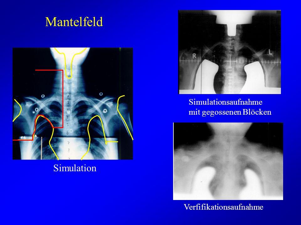 Mantelfeld Simulationsaufnahme mit gegossenen Blöcken Verfifikationsaufnahme Simulation