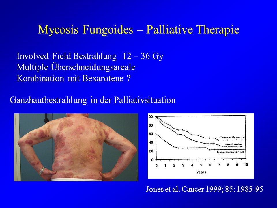 Mycosis Fungoides – Palliative Therapie Involved Field Bestrahlung 12 – 36 Gy Multiple Überschneidungsareale Kombination mit Bexarotene ? Ganzhautbest