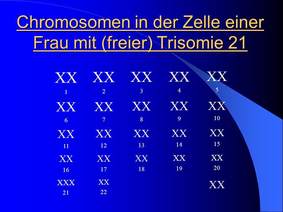 Chromosomen in der Zelle einer Frau mit (freier) Trisomie 21 XX 1 XX 2 XX 3 XX 4 XX 5 XX 6 XX 7 XX 8 XX 9 XX 10 XX 11 XX 12 XX 13 XX 14 XX 15 XX 16 XX