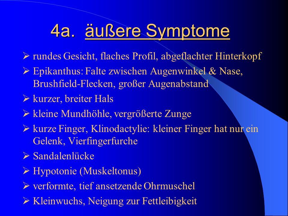 4a. äußere Symptome rundes Gesicht, flaches Profil, abgeflachter Hinterkopf Epikanthus: Falte zwischen Augenwinkel & Nase, Brushfield-Flecken, großer