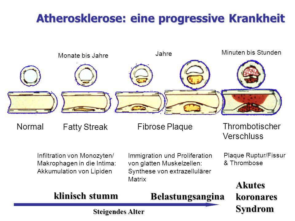 Normal Fatty Streak Fibrose Plaque Thrombotischer Verschluss Monate bis Jahre Jahre Minuten bis Stunden Infiltration von Monozyten/ Makrophagen in die
