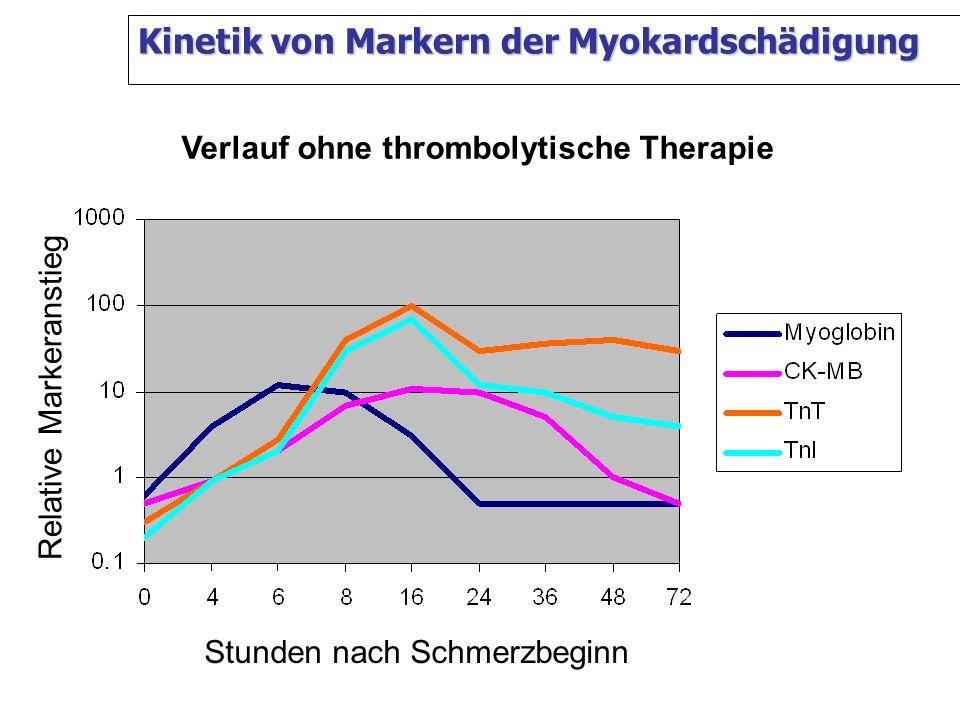 Kinetik von Markern der Myokardschädigung Relative Markeranstieg Stunden nach Schmerzbeginn Verlauf ohne thrombolytische Therapie