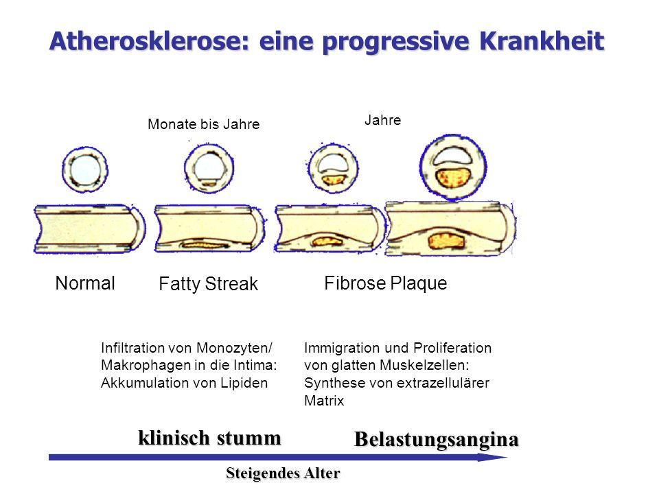 Atherosklerose: eine progressive Krankheit Normal Fatty Streak Fibrose Plaque Monate bis Jahre Jahre Infiltration von Monozyten/ Makrophagen in die In