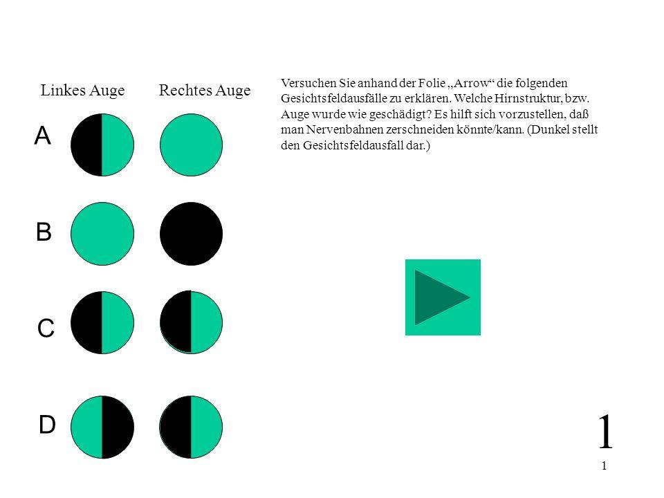 1 Versuchen Sie anhand der Folie Arrow die folgenden Gesichtsfeldausfälle zu erklären. Welche Hirnstruktur, bzw. Auge wurde wie geschädigt? Es hilft s