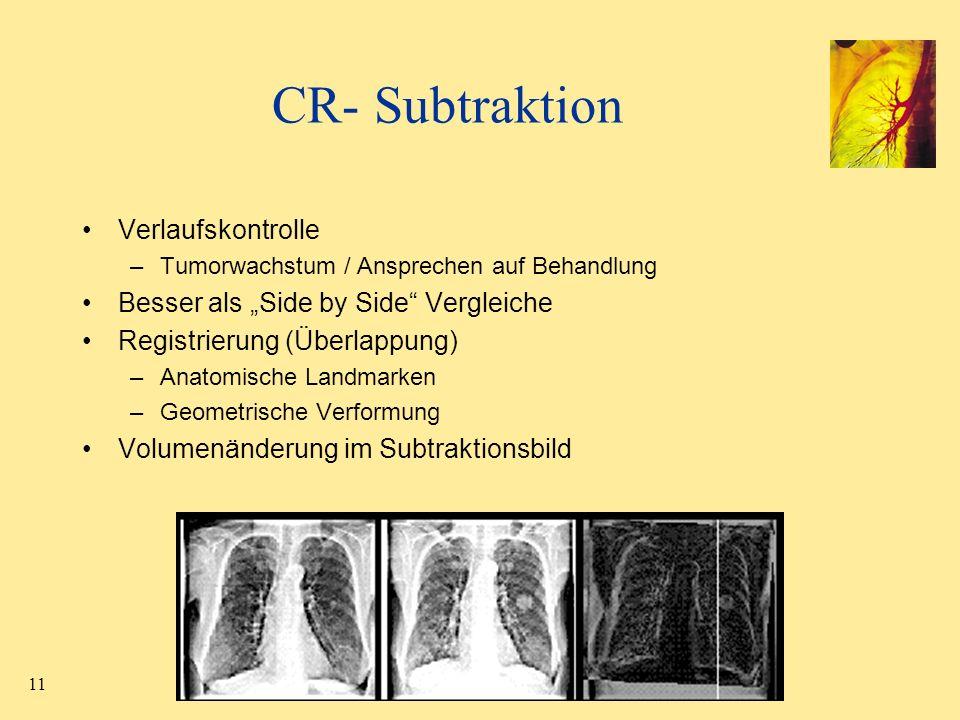 11 CR- Subtraktion Verlaufskontrolle –Tumorwachstum / Ansprechen auf Behandlung Besser als Side by Side Vergleiche Registrierung (Überlappung) –Anatom