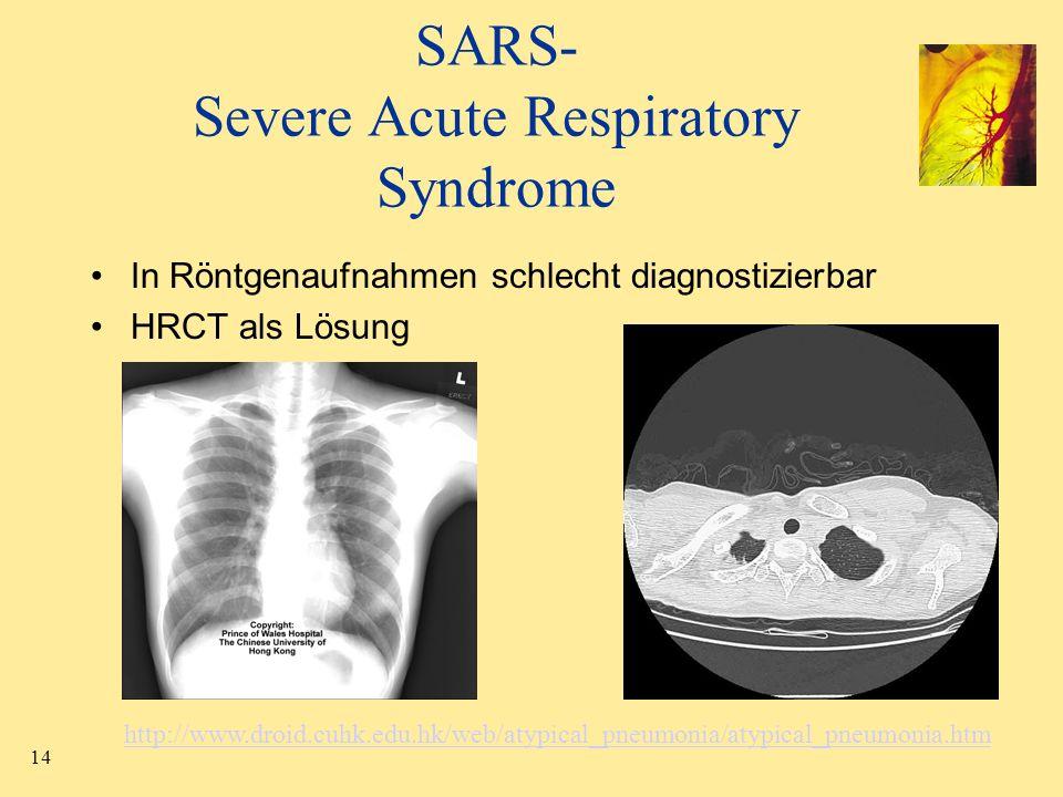 14 SARS- Severe Acute Respiratory Syndrome In Röntgenaufnahmen schlecht diagnostizierbar HRCT als Lösung http://www.droid.cuhk.edu.hk/web/atypical_pne
