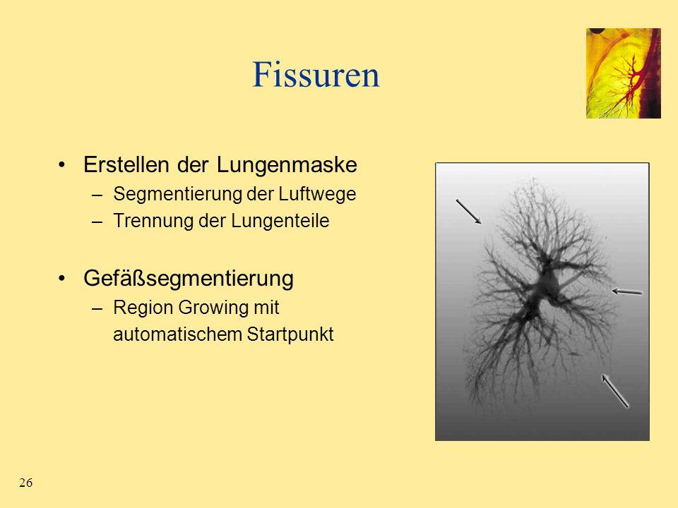 26 Fissuren Erstellen der Lungenmaske –Segmentierung der Luftwege –Trennung der Lungenteile Gefäßsegmentierung –Region Growing mit automatischem Start