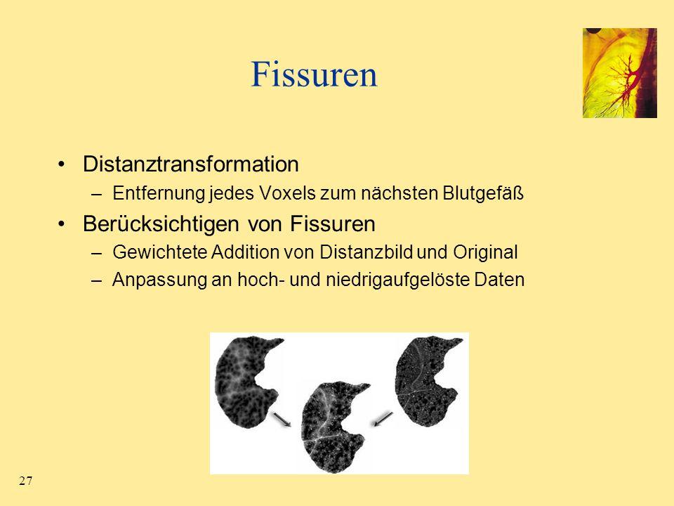 27 Fissuren Distanztransformation –Entfernung jedes Voxels zum nächsten Blutgefäß Berücksichtigen von Fissuren –Gewichtete Addition von Distanzbild un