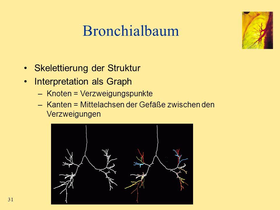 31 Bronchialbaum Skelettierung der Struktur Interpretation als Graph –Knoten = Verzweigungspunkte –Kanten = Mittelachsen der Gefäße zwischen den Verzw