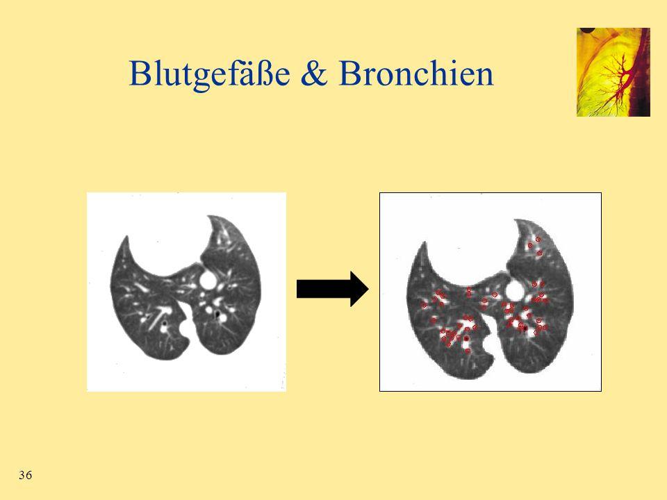 36 Blutgefäße & Bronchien