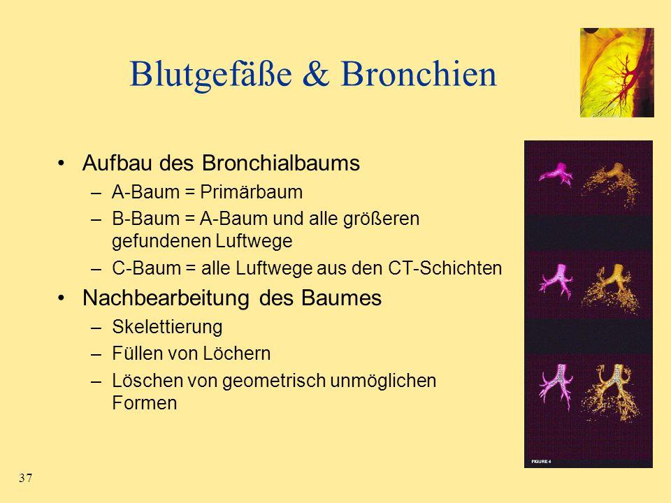 37 Blutgefäße & Bronchien Aufbau des Bronchialbaums –A-Baum = Primärbaum –B-Baum = A-Baum und alle größeren gefundenen Luftwege –C-Baum = alle Luftweg