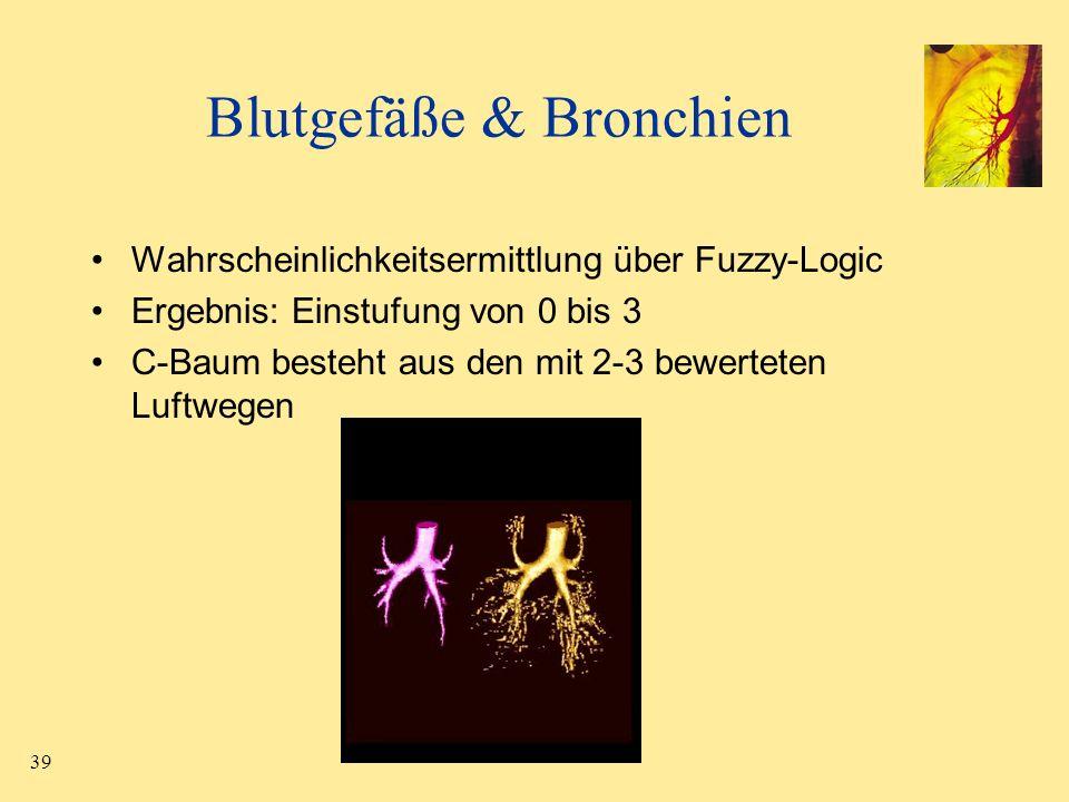 39 Blutgefäße & Bronchien Wahrscheinlichkeitsermittlung über Fuzzy-Logic Ergebnis: Einstufung von 0 bis 3 C-Baum besteht aus den mit 2-3 bewerteten Lu