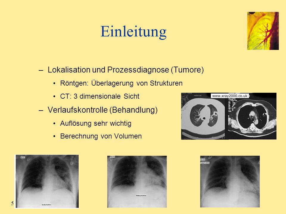 5 Einleitung –Lokalisation und Prozessdiagnose (Tumore) Röntgen: Überlagerung von Strukturen CT: 3 dimensionale Sicht –Verlaufskontrolle (Behandlung)