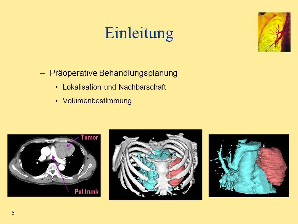 7 Einleitung –Berechnung von Lungenparametern (Segmentabhängig) Globale Berechnung ungenau Mittlere Lungendichte Emphysem Index