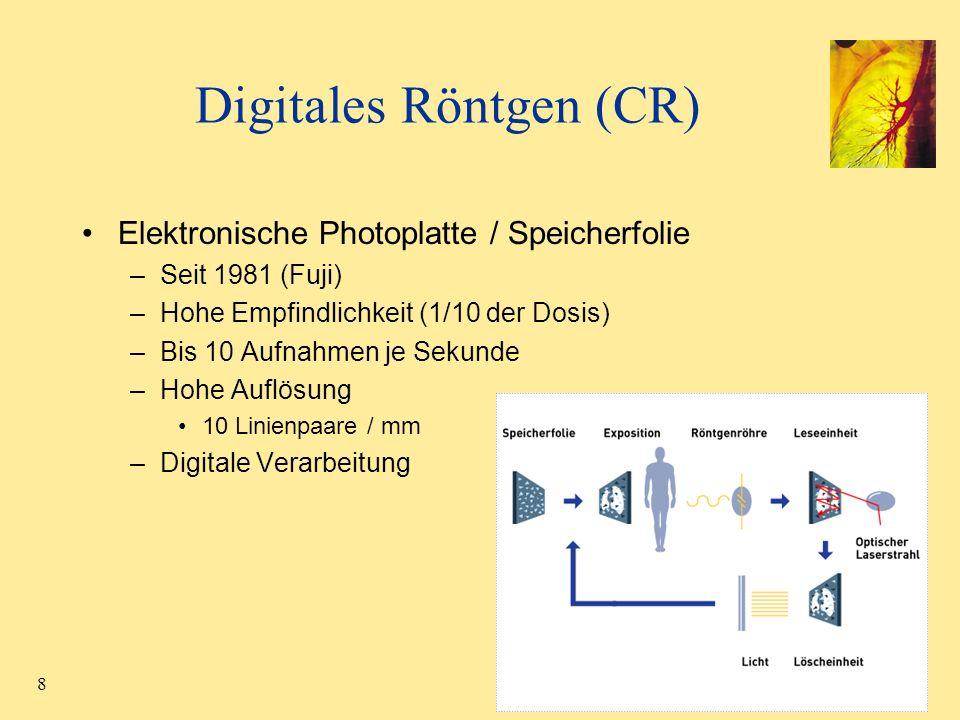 8 Digitales Röntgen (CR) Elektronische Photoplatte / Speicherfolie –Seit 1981 (Fuji) –Hohe Empfindlichkeit (1/10 der Dosis) –Bis 10 Aufnahmen je Sekun