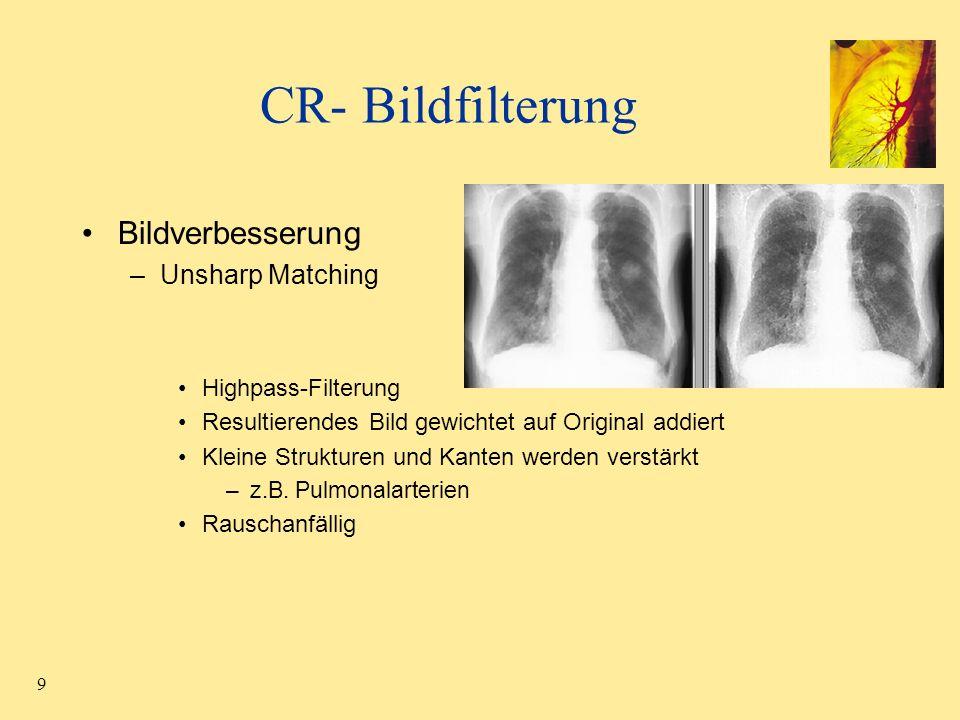30 Einteilung der Lunge in Segmente über den Bronchialbaum Segmentierung des Lungenparenchyms durch Region Growing Sigma-Filter –Rauschen unterdrücken –Kanten erhalten Verfolgung des Bronchialbaumes
