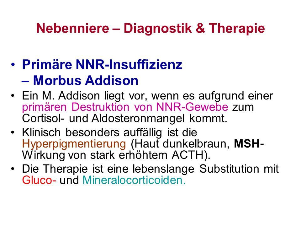 Nebenniere – Diagnostik & Therapie Primäre NNR-Insuffizienz – Morbus Addison Ein M. Addison liegt vor, wenn es aufgrund einer primären Destruktion von