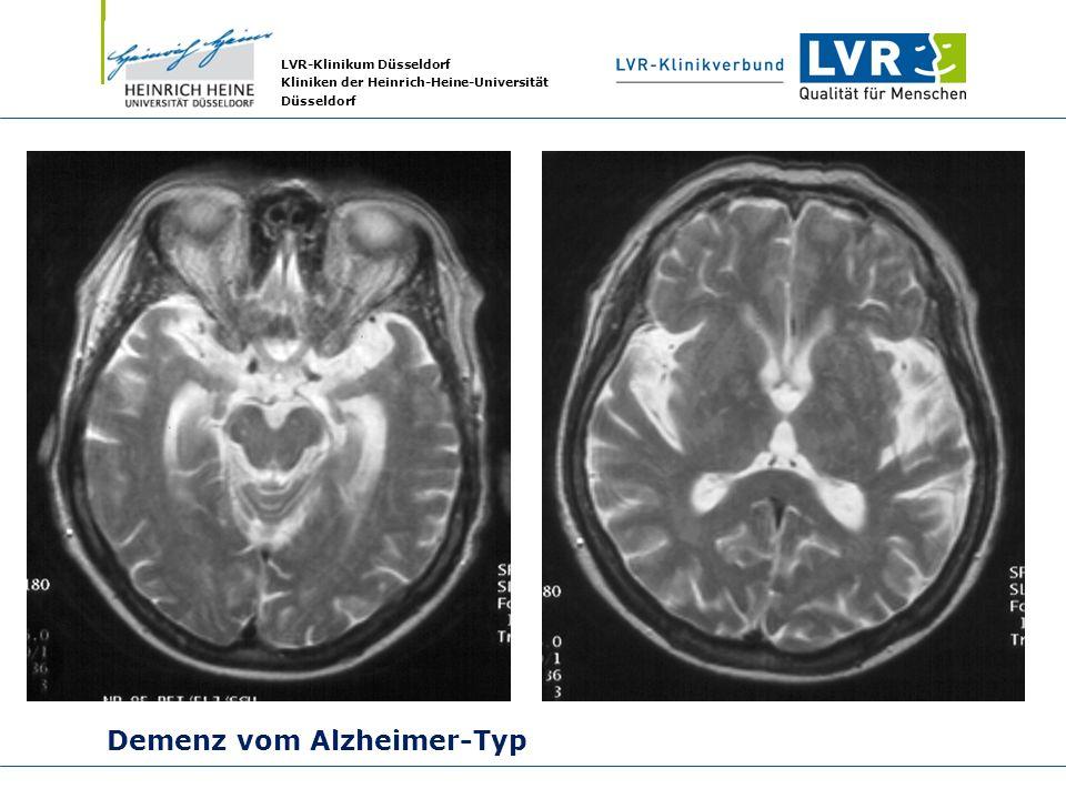 LVR-Klinikum Düsseldorf Kliniken der Heinrich-Heine-Universität Düsseldorf Demenz vom Alzheimer-Typ Prof. Dr. W. Reith, Abt. f. Neuroradiologie, Unive