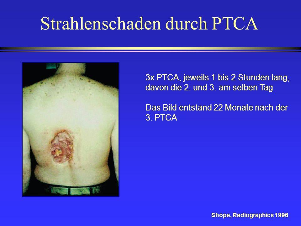 3x PTCA, jeweils 1 bis 2 Stunden lang, davon die 2. und 3. am selben Tag Das Bild entstand 22 Monate nach der 3. PTCA Shope, Radiographics 1996 Strahl