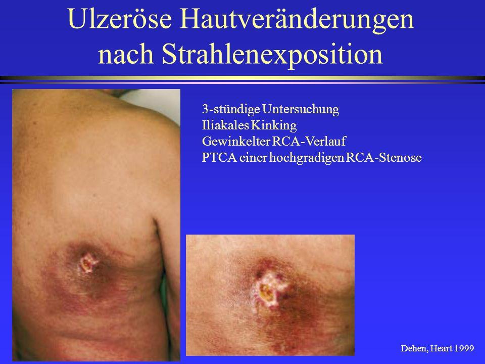 Ulzeröse Hautveränderungen nach Strahlenexposition 3-stündige Untersuchung Iliakales Kinking Gewinkelter RCA-Verlauf PTCA einer hochgradigen RCA-Steno
