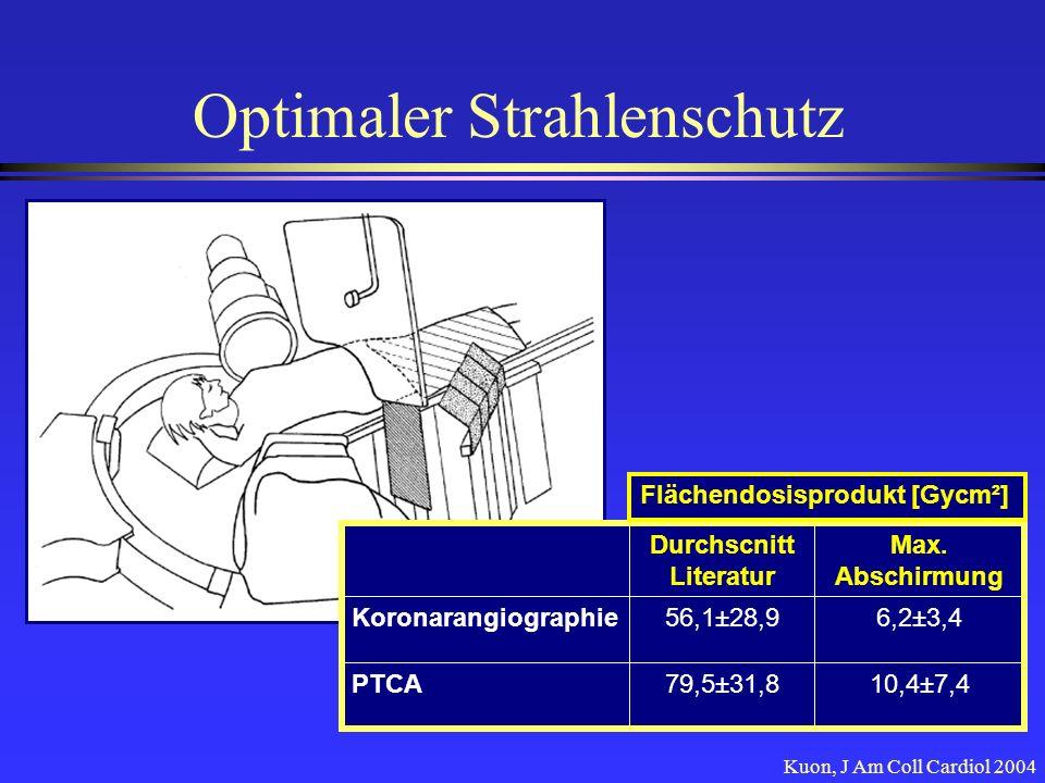 Optimaler Strahlenschutz Kuon, J Am Coll Cardiol 2004 Max. Abschirmung Durchscnitt Literatur 10,4±7,479,5±31,8PTCA 6,2±3,456,1±28,9Koronarangiographie