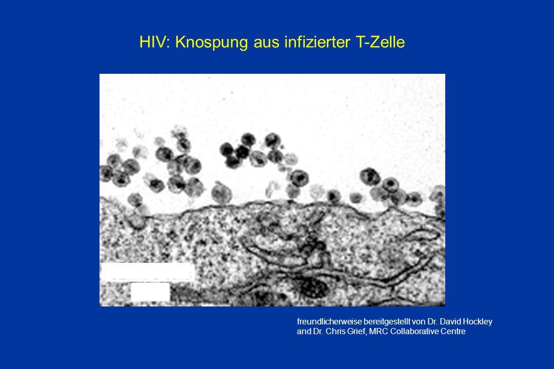CEM III B cells 24 hr HIV: Knospung aus infizierter T-Zelle freundlicherweise bereitgestellt von Dr. David Hockley and Dr. Chris Grief, MRC Collaborat