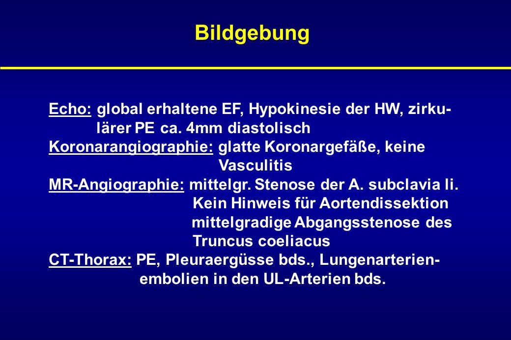 Fallbericht III EKG: ST Hebungen und T-Negativierungen in V4-V6 Labor: CK 856 U/l, CKmb 126 U/l und Troponin pos.