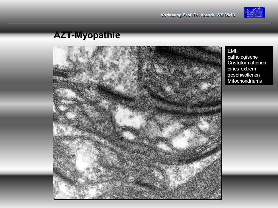 Vorlesung Prof. Dr. Arendt WS 09/10 AZT-Myopathie EMI: pathologische Cristaformationen eines extrem geschwollenen Mitochondriums