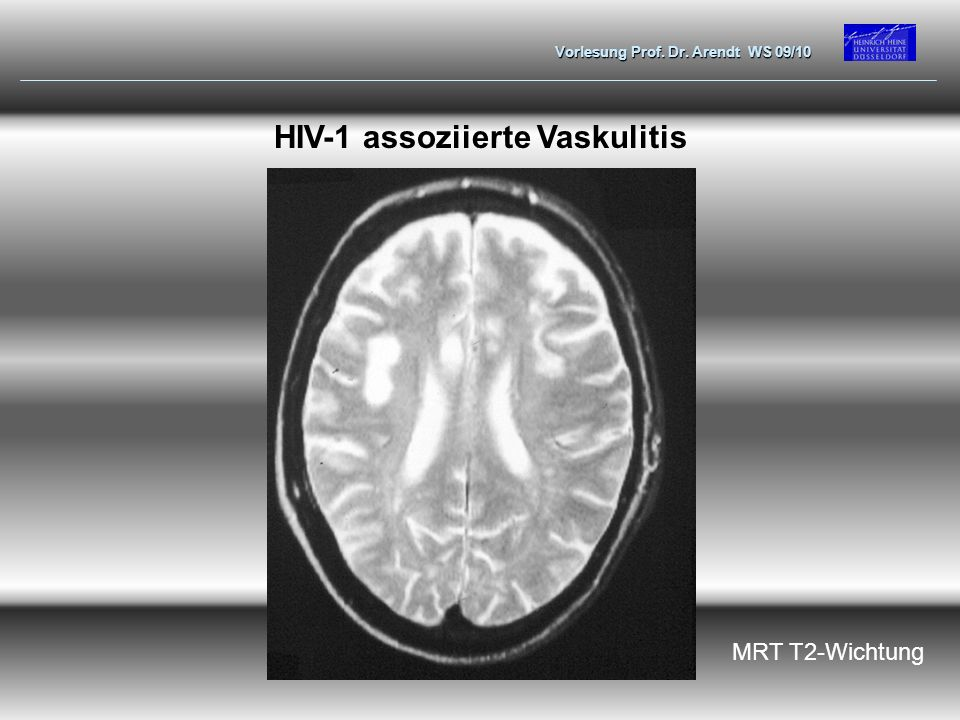 Vorlesung Prof. Dr. Arendt WS 09/10 HIV-1 assoziierte Vaskulitis MRT T2-Wichtung