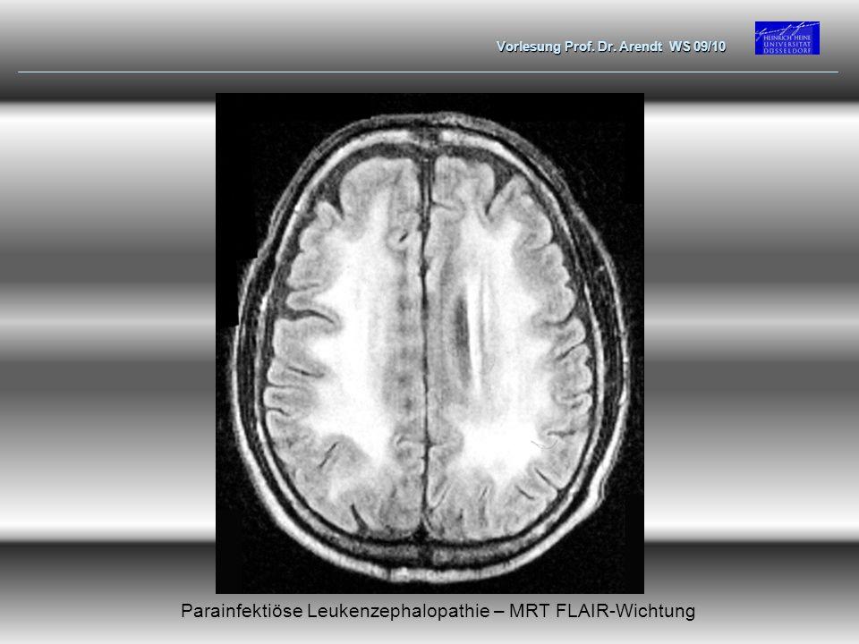 Vorlesung Prof. Dr. Arendt WS 09/10 Parainfektiöse Leukenzephalopathie – MRT FLAIR-Wichtung