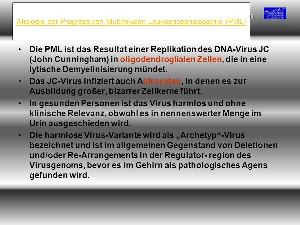 Ätiologie der Progressiven Multifokalen Leukoencephalopathie (PML) Die PML ist das Resultat einer Replikation des DNA-Virus JC (John Cunningham) in ol