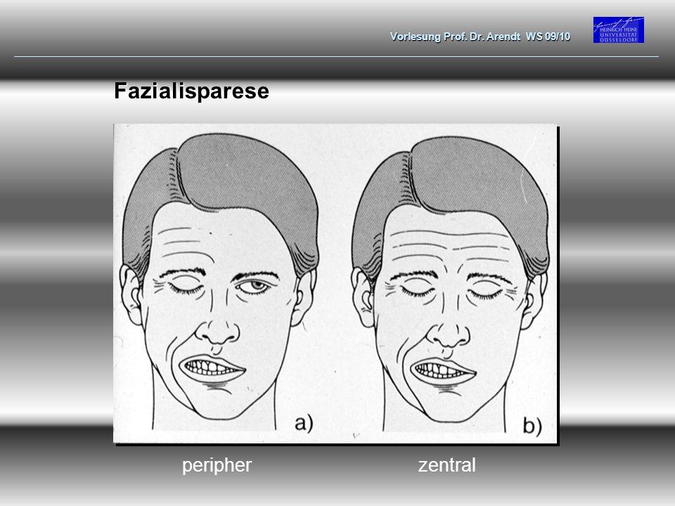 Vorlesung Prof. Dr. Arendt WS 09/10 Fazialisparese zentralperipher