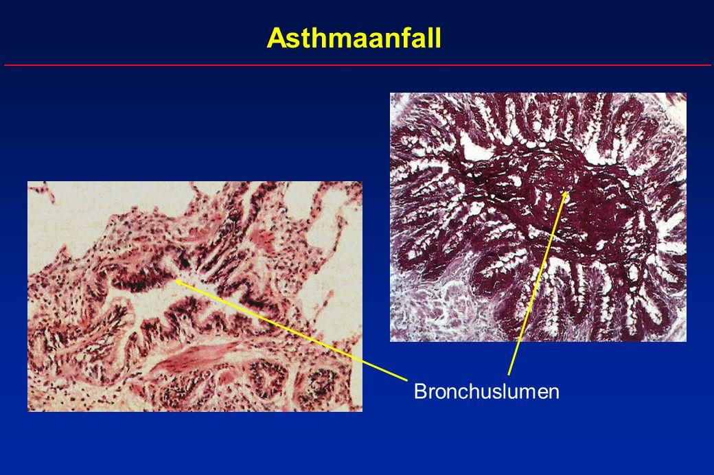 Asthmaanfall Bronchuslumen