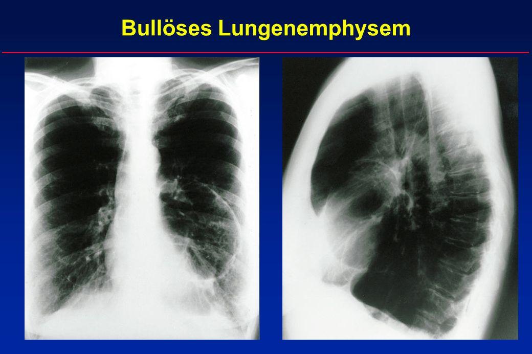 Bullöses Lungenemphysem