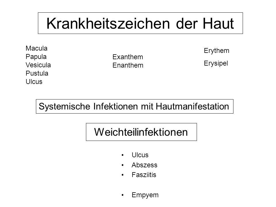 Krankheitszeichen der Haut Erythem Erysipel Macula Papula Vesicula Pustula Ulcus Exanthem Enanthem Systemische Infektionen mit Hautmanifestation Weich