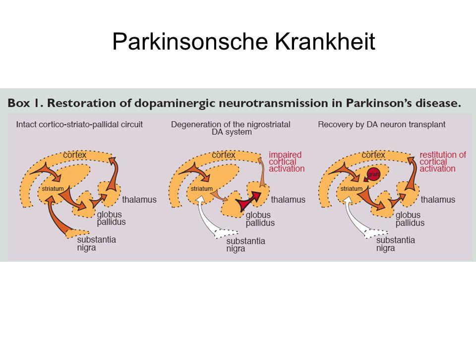 Parkinsonsche Krankheit