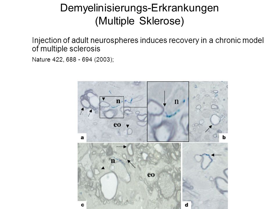 Demyelinisierungs-Erkrankungen (Multiple Sklerose) Injection of adult neurospheres induces recovery in a chronic model of multiple sclerosis Nature 42