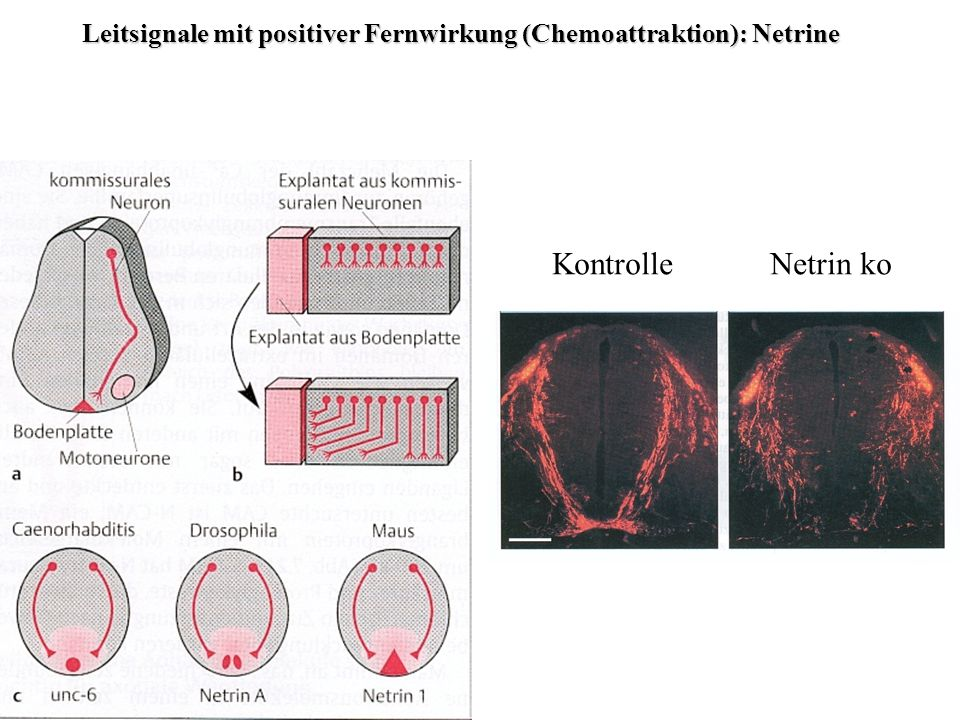 Leitsignale mit negativer Fernwirkung (Chemorepulsion): Semaphorine Semaphor: signalisieren Kokultur von Nervenzellen (hier Hinterwurzelganglion) mit Semaphorin-produzierenden Zellen hemmt Axonwachstum aus dem Ganglion.